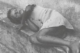 """Sílvio Savat fotografado em 1979 com o corpo coberto de moscas e usando vestido na Colônia; imagem de """"Holocausto Brasileiro"""""""